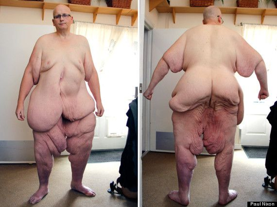 World s fattest woman nude