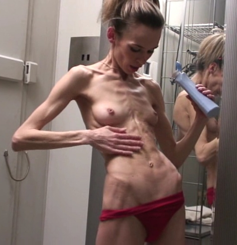 Anorexic chicks nude pics