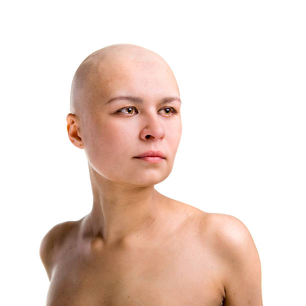 Nude pictures of women that are bald